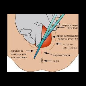 Эпизиотомия, важность эпизиотомии в родах
