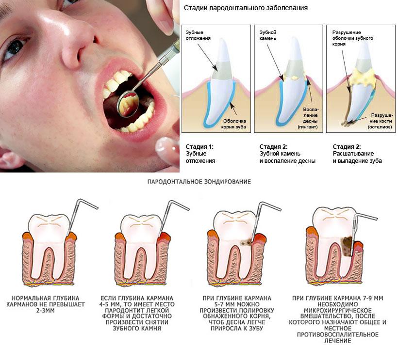 Беременность и зубы. Причины ухудшения зубов, профилактика